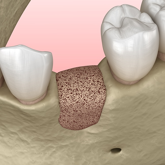 Animated smile after engineer tissue and bone grafting