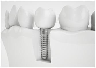 implant_stock