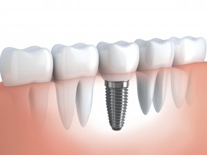 We offer the best dental implants around.