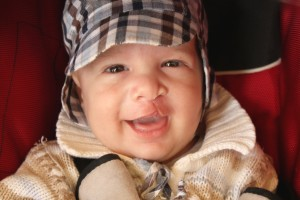 baby with cleft lip happy to visit the Houston oral surgeon