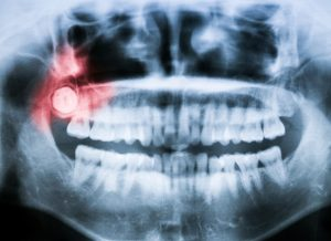 Oral surgeon in houston discusses tooth crowding and wisdom teeth