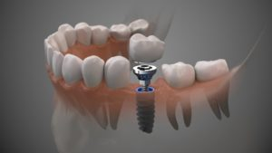 Illustration of implant, abutment, and crown being placed in jaw