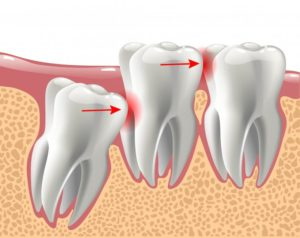 Illustration of mouth in need of wisdom teeth removal
