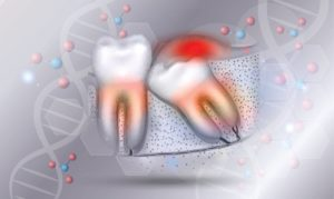 Wisdom teeth illustration with DNA molecules in background