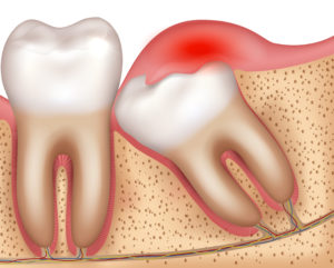 Illustration of mouth that needs wisdom tooth removal