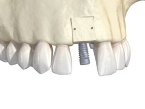 Illustration of block dental bone graft and dental implant